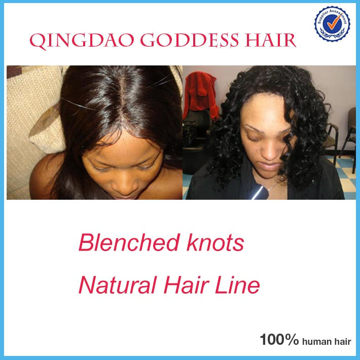 blenched knots and hairline