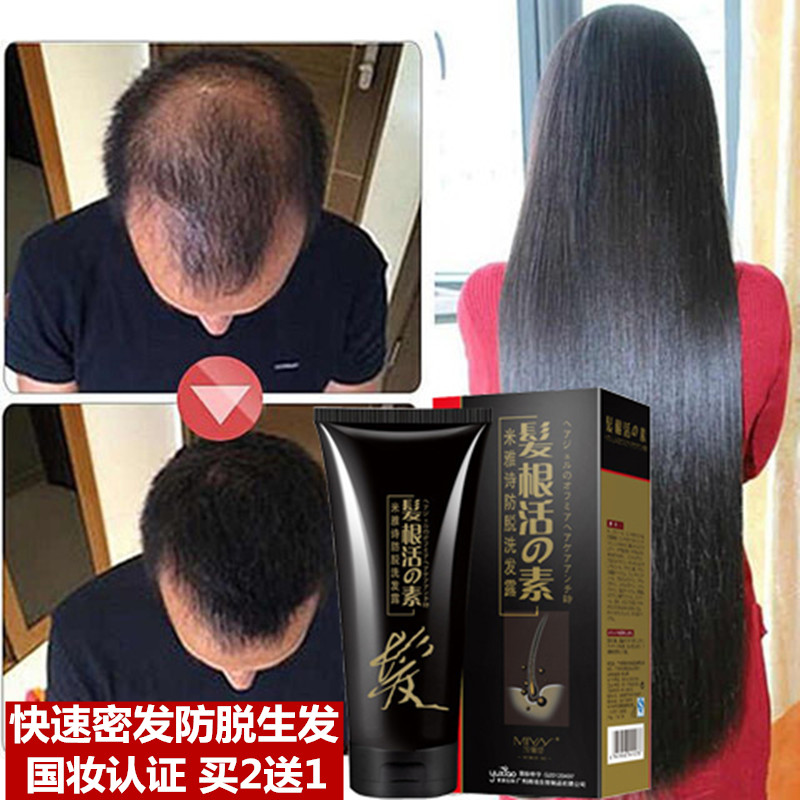 Hair Growth Shampoos Products Hair Care Fast Powerful Regrowth Essence Liquid Treatment Preventing Hair Loss For Men And Women(China (Mainland))