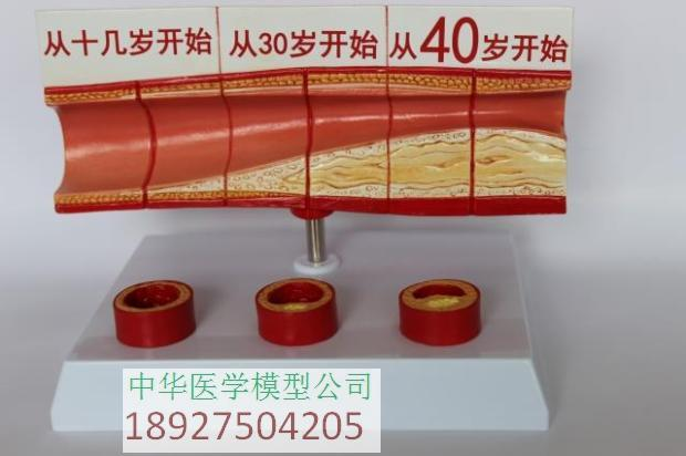 Vascular anatomical model atherosclerosis display at all stages of age-related vascular display Blood Lipid Cholesterol and Age