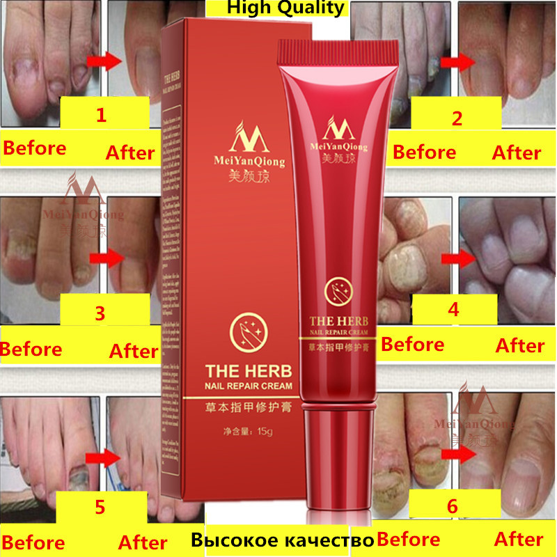 Herbal MeiYanQiong Fungal Nail Treatment Essence Nail and Foot Whitening Toe Nail Fungus,Profession Removal Feet Care Nail Gel