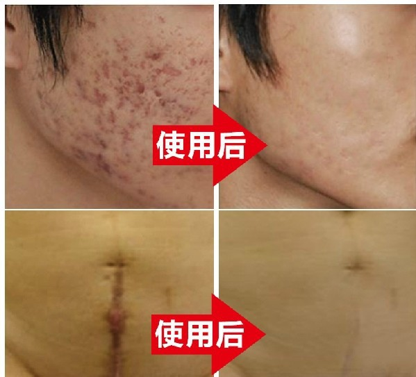 Authentic Nuobisong face care acne scar removal cream Acne Spots skin carewhitening face cream stretch marks moisturizing(China (Mainland))