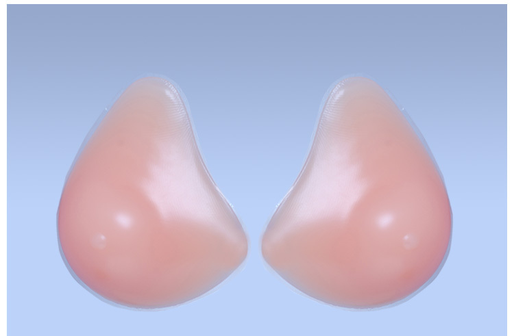 A breast implant is a prosthesis used to change the size shape and contour of a womans breast In reconstructive plastic surgery breast implants can be placed