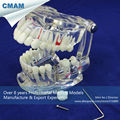 CMAM DENTAL08 Transparent Dental Implant Disease Teeth Model Restoration
