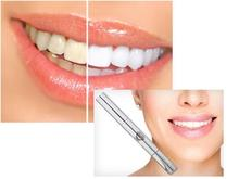 New 2015 Creative Effective White Teeth Whitening Pen Tooth Gel Whitener Bleach(China (Mainland))