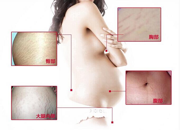 Estrias obesidade pós-parto, Gravidez reparação creme, Linha de folga, Dsmv um reparo potente produtos cicatriz, Obesidade abdômen 50 g