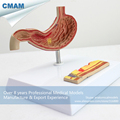 CMAM STOMACH01 Half Size Human Diseased Stomach Medical Science Anatomical Stomach Model