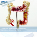 CMAM INTESTINE01 Medical Science Anatomical Intestines Model