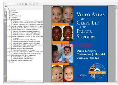 Video Atlas of Cleft Lip and Palate Surgery (00)(China (Mainland))