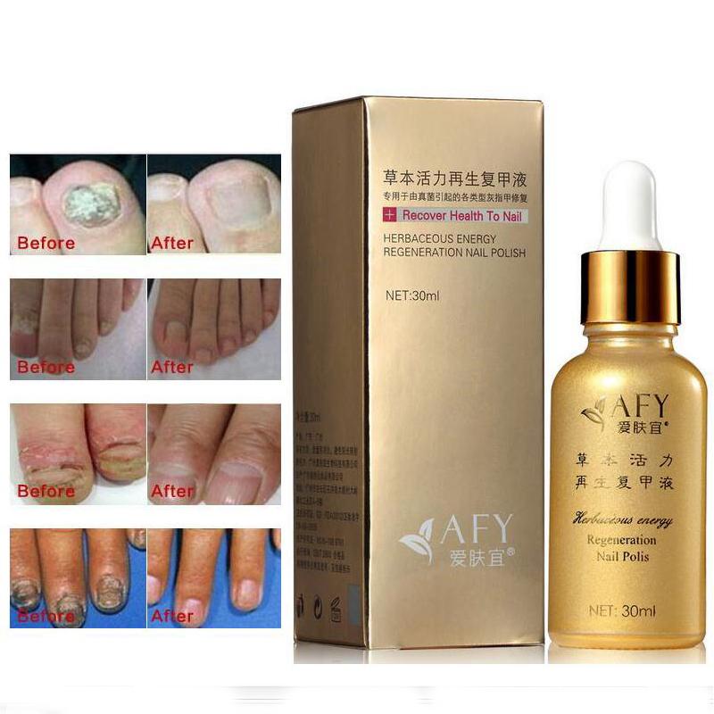 Fungal Nail Treatment TCM Essence Oil Hand and Foot Whitening Toe Nail Fungus Removal Feet Care Nail Polish Tools Nail Gel(China (Mainland))