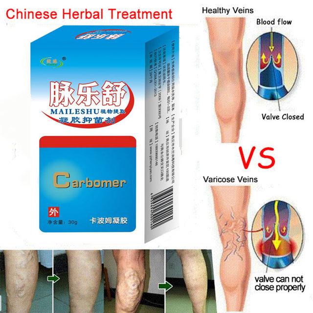 Massageador Massage Chair Massager Varicose Veins Medicine Gel Spray On The Leg Acid Bilges Itching Earthworm Lumps Old Bad