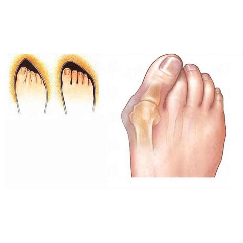 3Pair Silicone Toe Separators Pedicure Device Shield Stretchers Bunion Protector Straightener Corrector Valgus Pro Foot Care(China (Mainland))