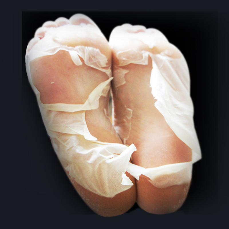 How to Treat Peeling Skin on Feet | LIVESTRONG.COM